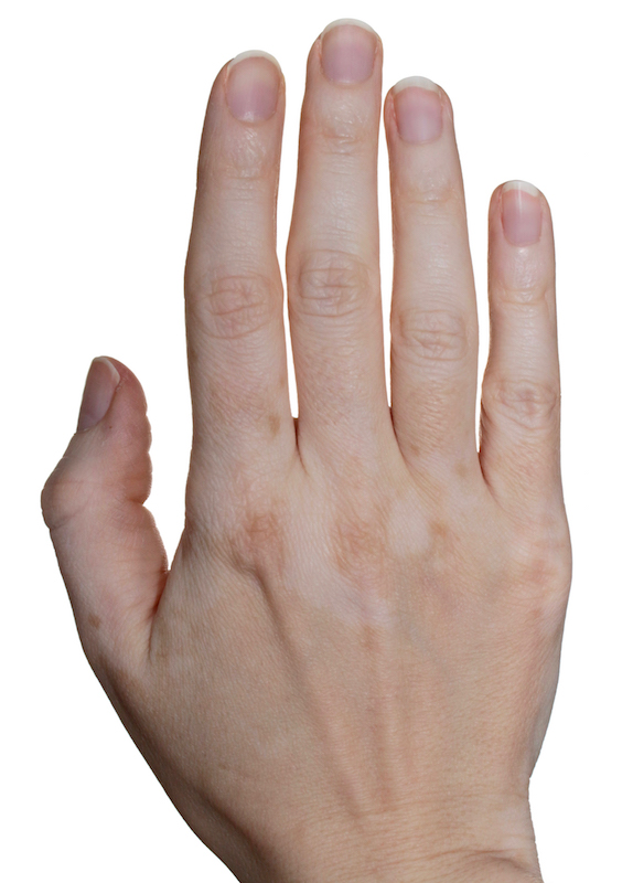 hand with vitiligo